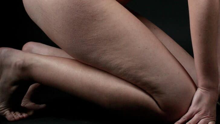 L'auto-massage contre la cellulite: quels sont les bons gestes?